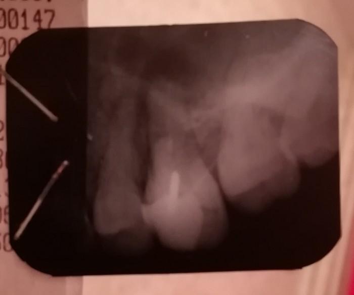 Стоматологи помогите. Зубы, Боль, Стоматология