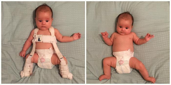 Дисплазия у новорожденного ребенка Дети, Болезнь, Дисплазия, Длиннопост