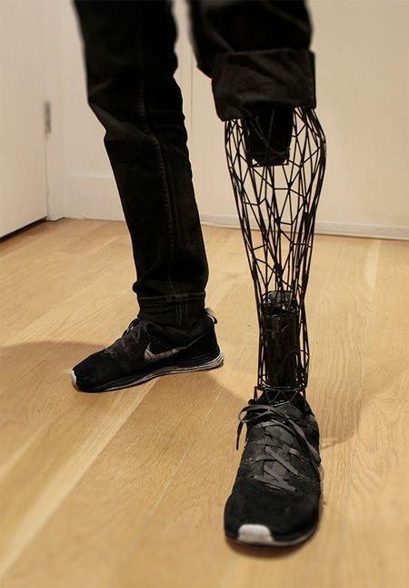 Протез, напечатанный на 3D-принтере