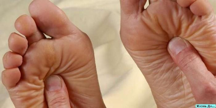 Диабетическая полинейропатия нижних конечностей - что это? Сахарный диабет, Жизнь с диабетом, Осложнения, Длиннопост