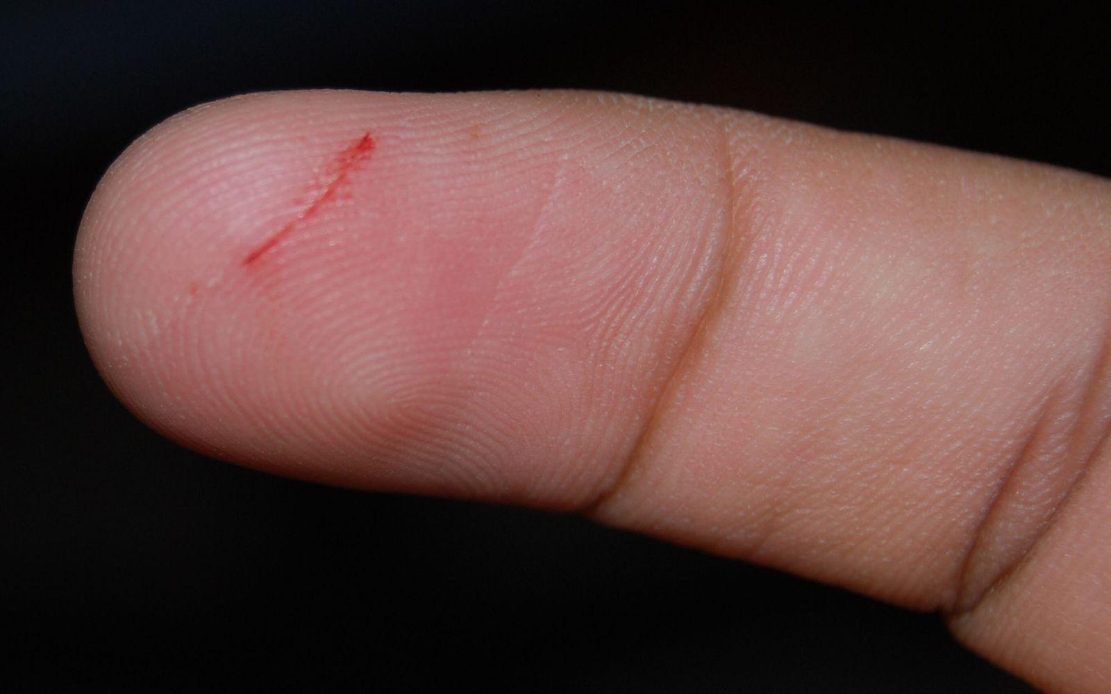 Brubeck к чему мелкие порезы пальцев рук сообщение