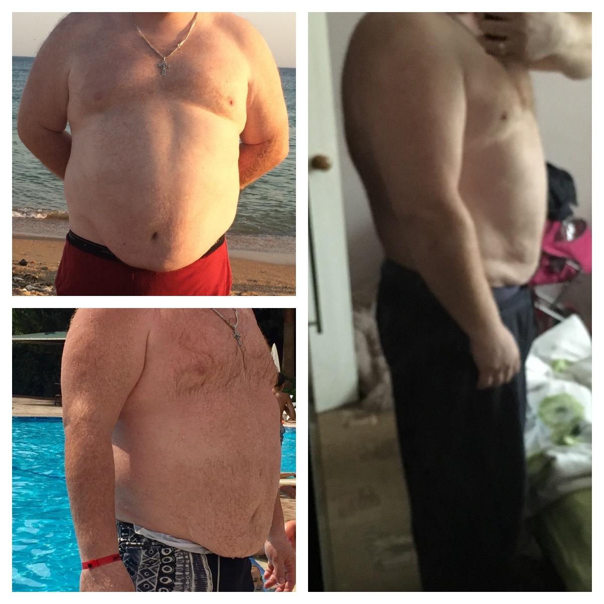 Болят суставы, позвоночник, вес 110кг диагностика артроза тазобедренного сустава