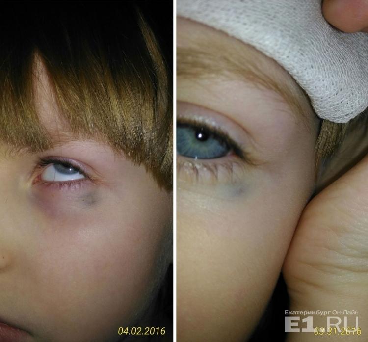фото ребенка и роды