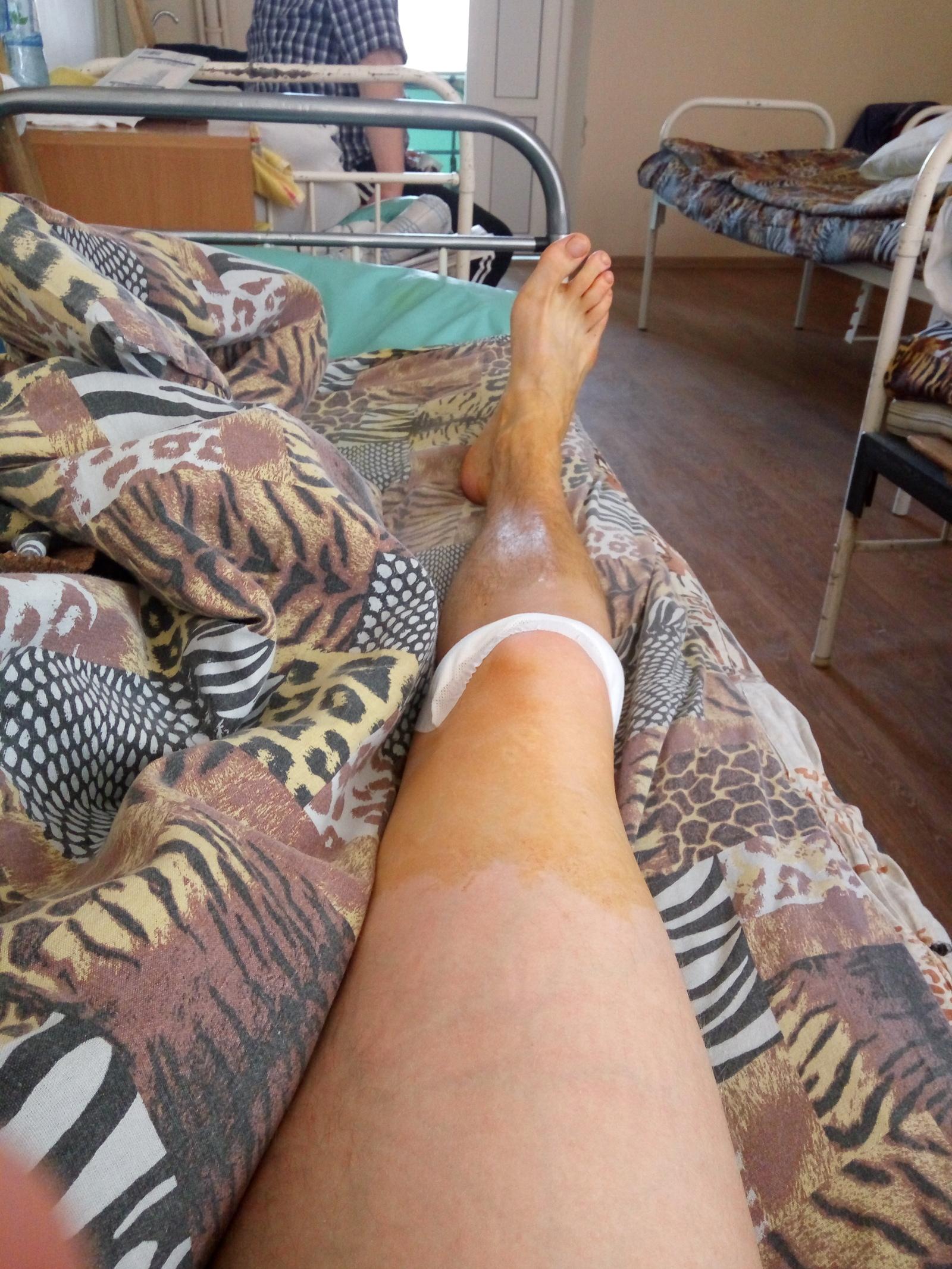 Цены на операцию удаления экзостоза с коленного сустава евпаторий лечение суставов и позвоночника