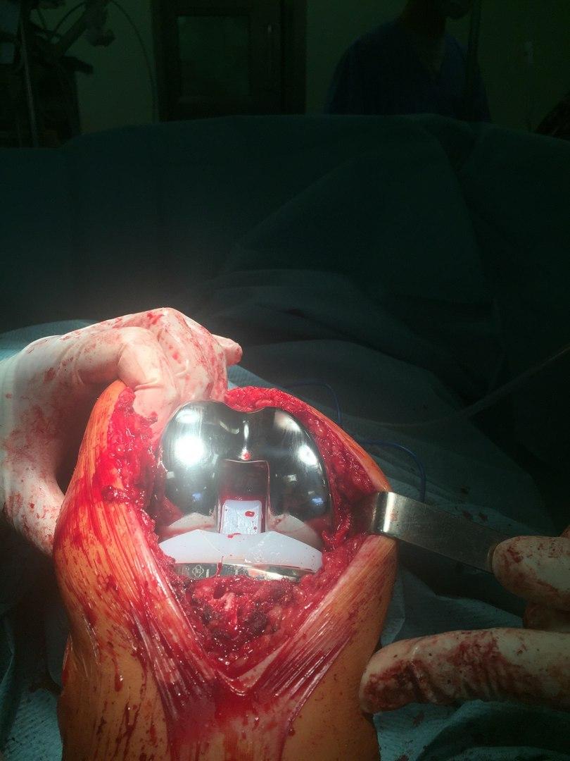 Артроскопия коленного сустава имплант надорванные связки коленного сустава жидкость в колене