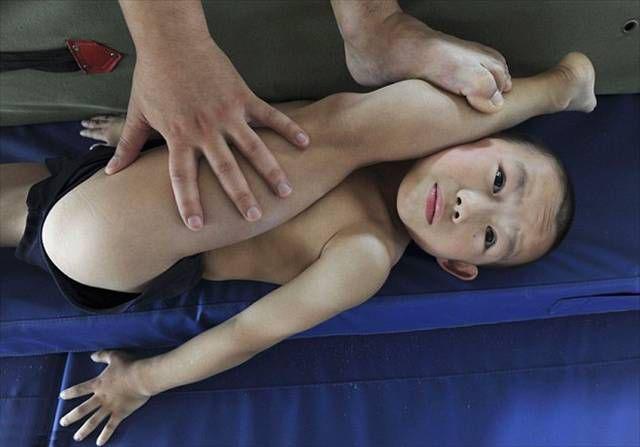 Можно ли тренироваться при артрозе коленного сустава какие ванны полезны для суставов