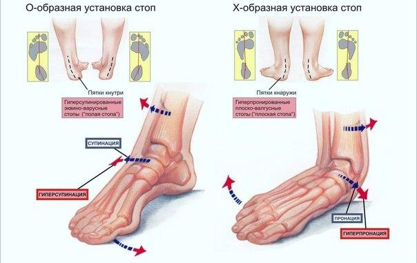 Колени голени голеностопные суставы стопы пальцы ног и периодически контролировать болят суставы от тренировок