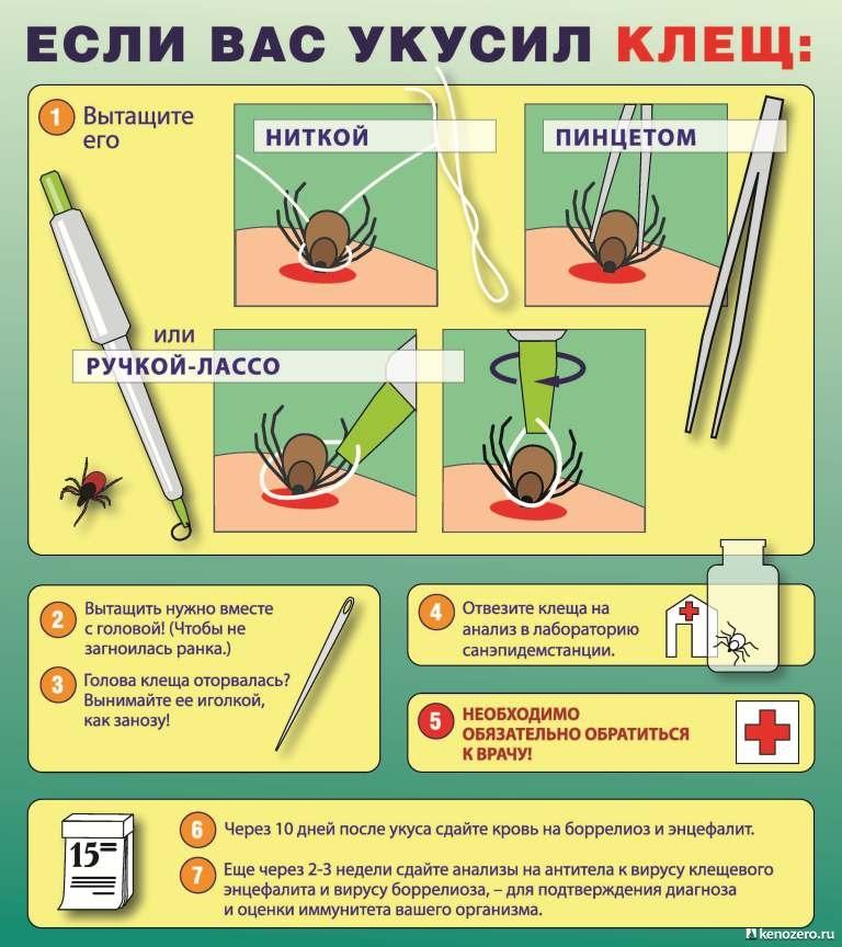 Полезно знать. Что делать если вас укусил клещ. | Пикабу