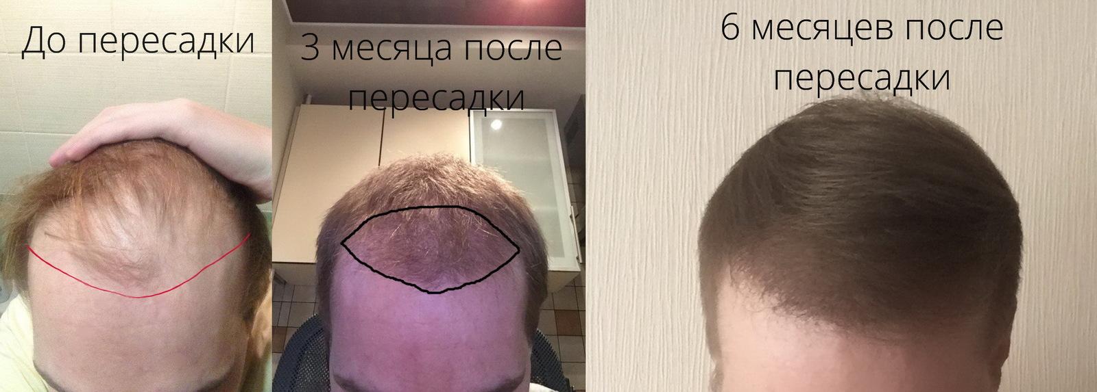 Сделать трансплантацию волос в