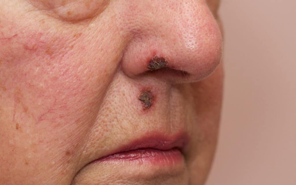Конопля кожные заболевания оборудование для конопли цена
