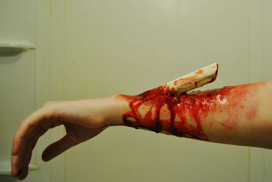 перелом руки фото открытый