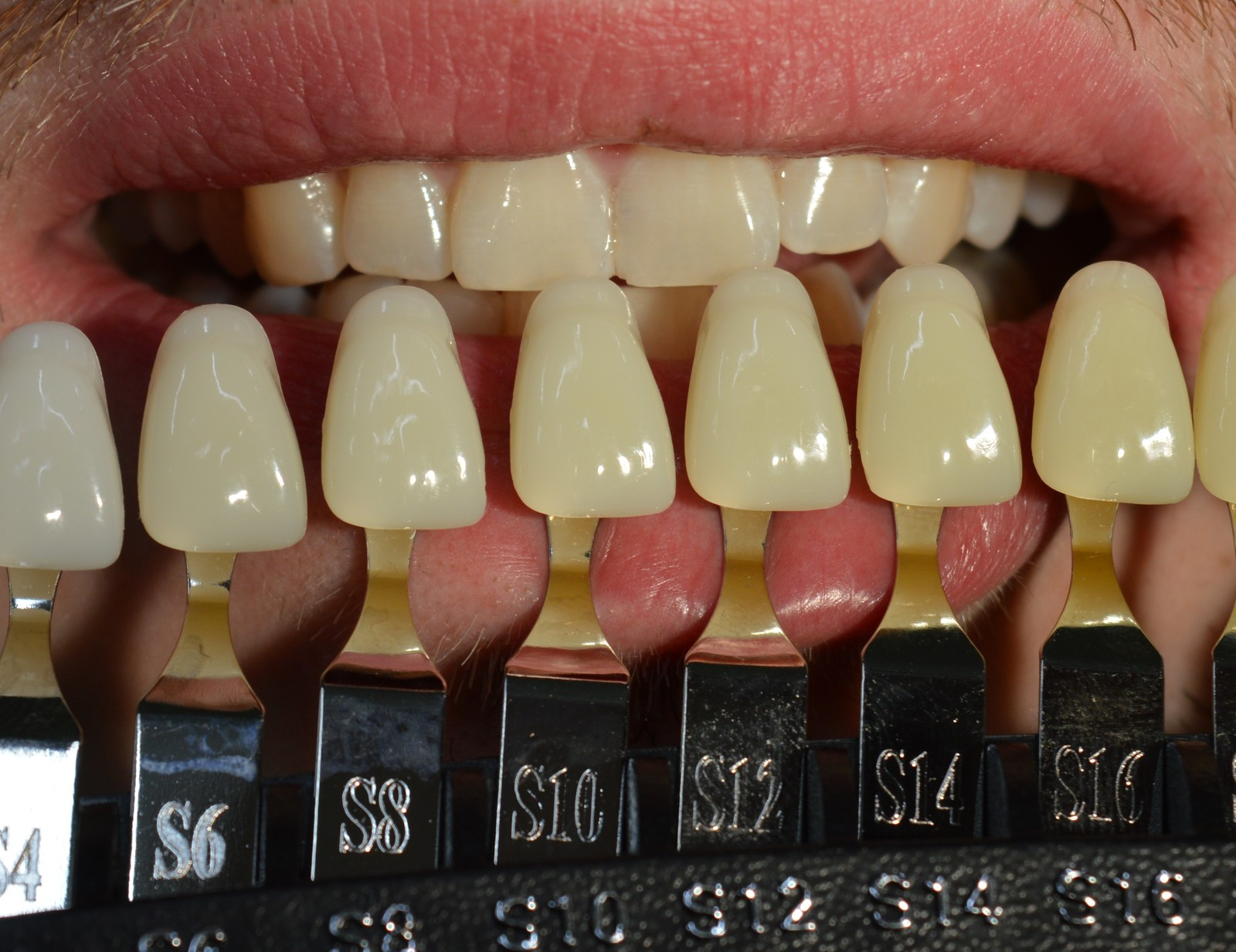 Идеальный цвет зубов